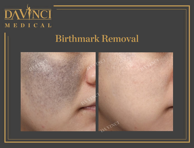 Tattoo & Birthmark Removal